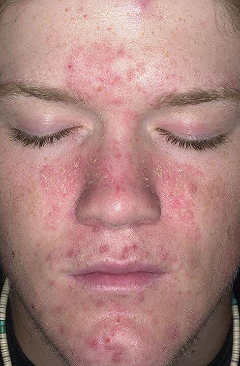 dermatite s borrh ique sur le visage photo traitement rem des populaires. Black Bedroom Furniture Sets. Home Design Ideas