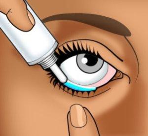 La procédure du rajeunissement de la peau de la personne de lhomme
